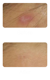 Acne Scar Removal Treatment in Singapore - Face of Man