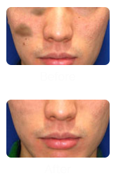 Laser Treatment for Pigmentation in Singapore - Face of Man